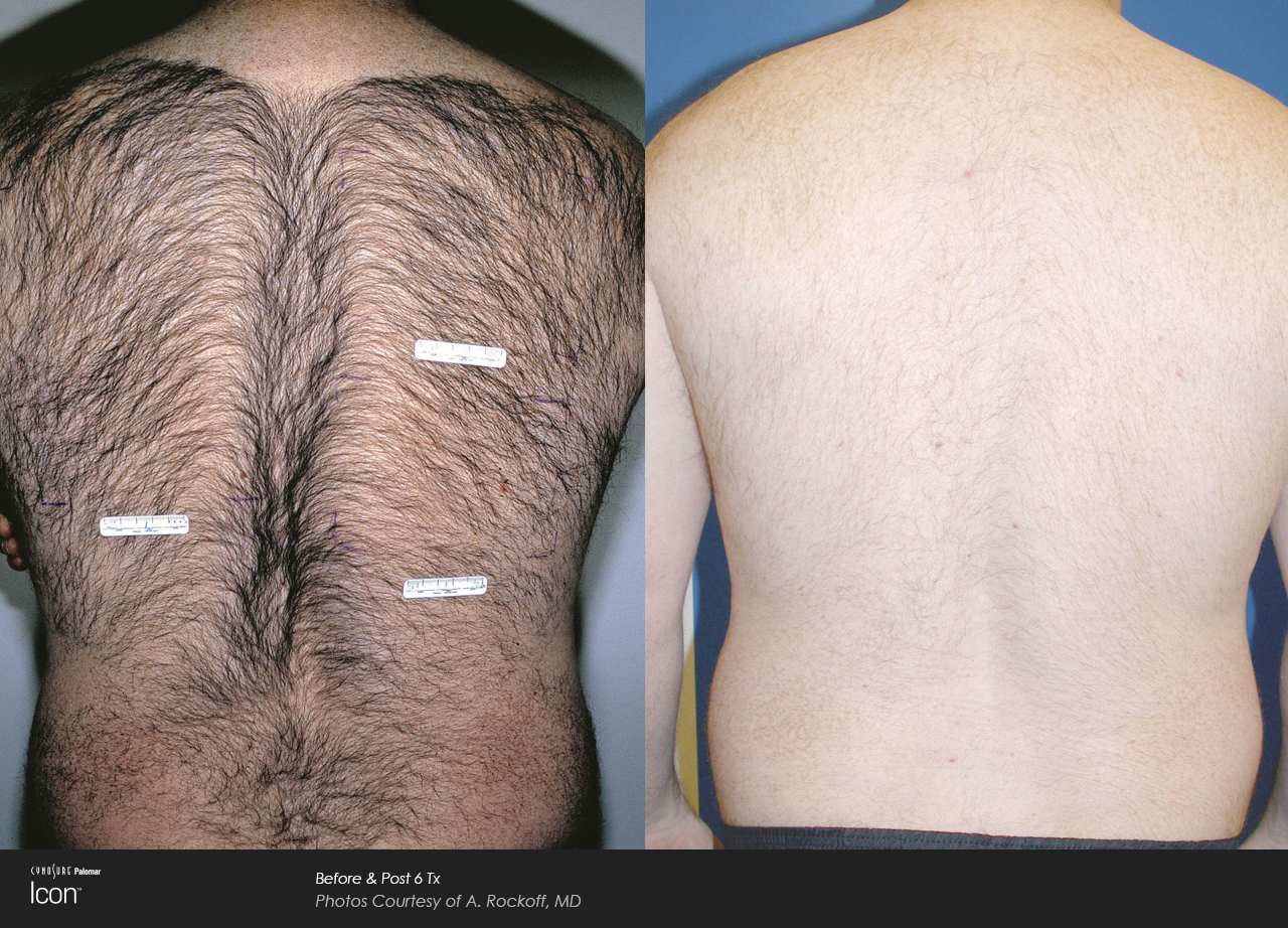 White settlement family medicinelaser hair removal hair removal before and after solutioingenieria Choice Image