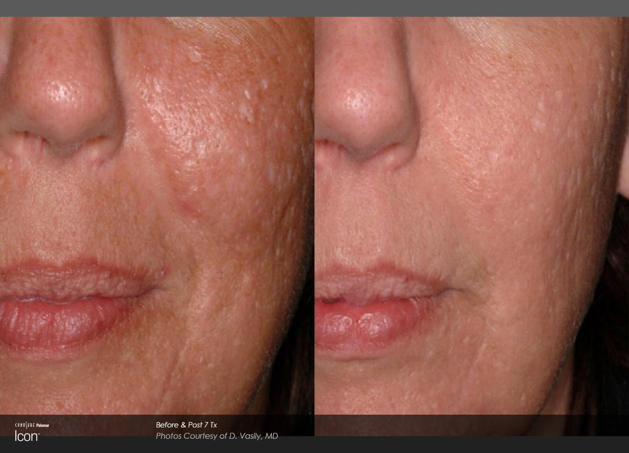 Facial laser scar removal
